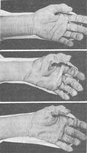 мацерация кожи кистей