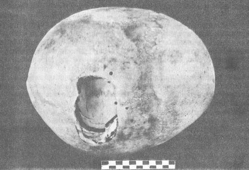 террасовидный перелом костей свода черепа